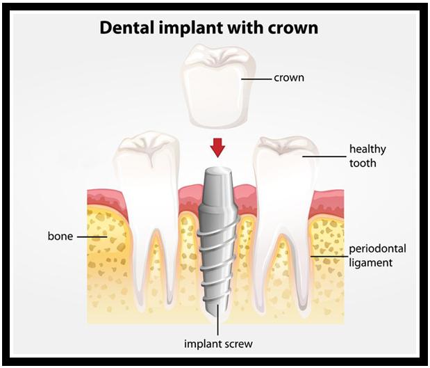 Crowns, Bridges, Implants